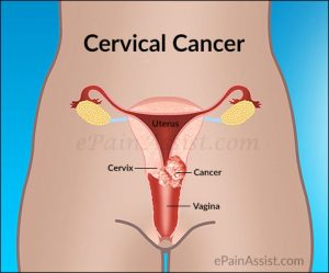 Image result for cervical cancer